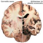 Nuove scoperte sull'Alzheimer: l'ormone ossitocina efficace contro i danni delle placche