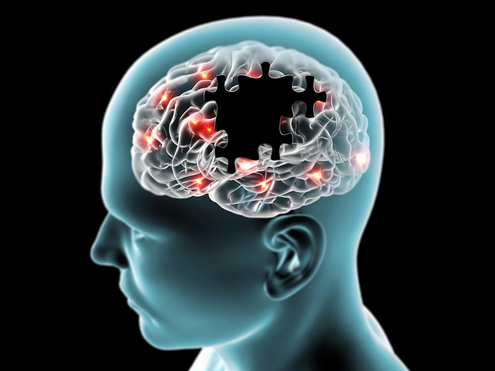 Perché i neuroni diminuiscono con l'età: scoperta proteina chiave