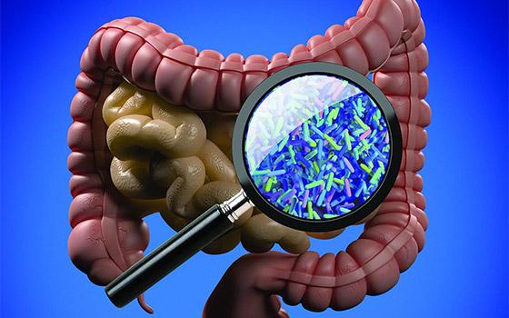 Stretto legame fra sviluppo del diabete 2 e intestino
