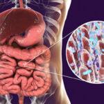 Cambiamenti nella flora intestinale favoriscono diabete tipo 2
