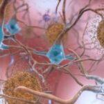 Scoperto nuovo bersaglio farmacologico contro l'Alzheimer