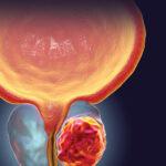 Cancro alla prostata: scoperta una proteina fondamentale per nuove cure