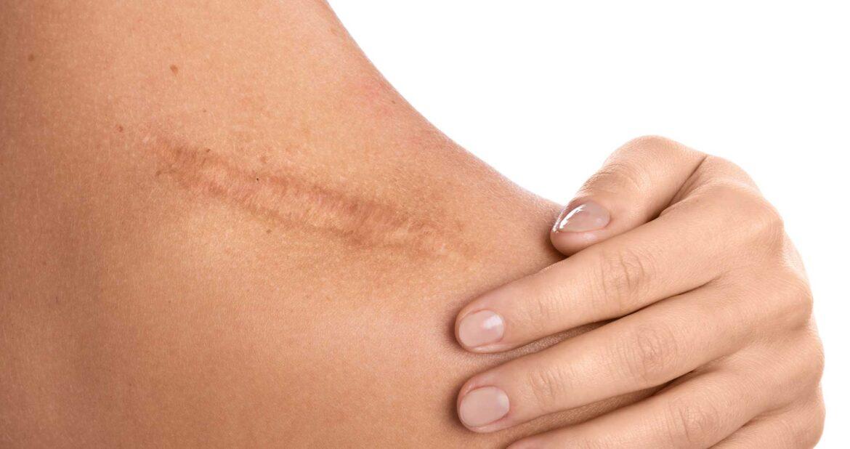 Guarire ferita senza cicatrice