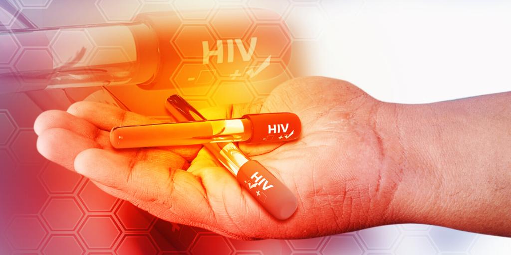 Nuovo farmaco anti HIV Leronlimab: funziona sulle scimmie macachi