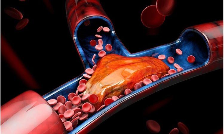 Covid trombosi cause gene Selectina
