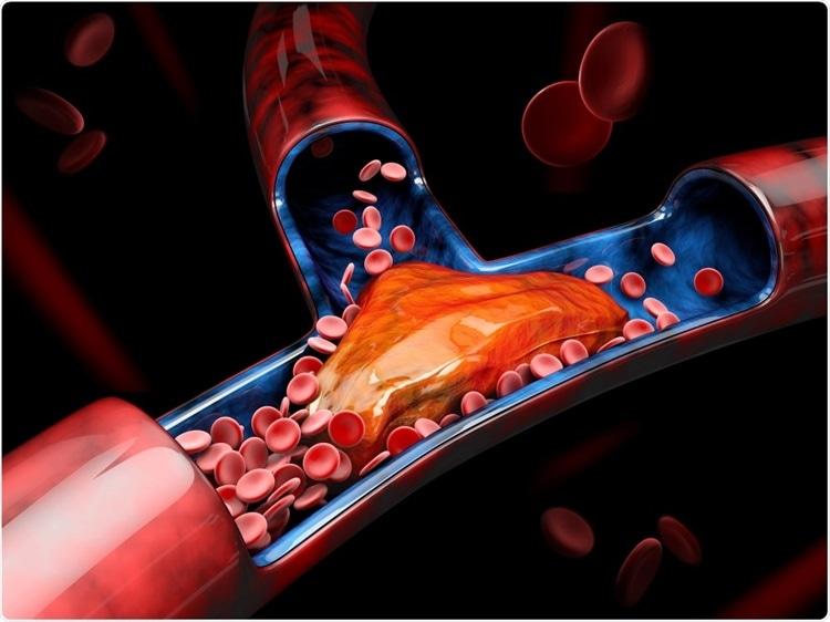 Covid-19 rischio trombosi cause: uomini ultracinquantenni o con problemi genetici