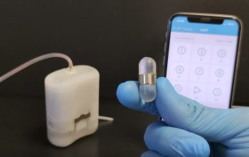 Cure diabete con robot impiantabile