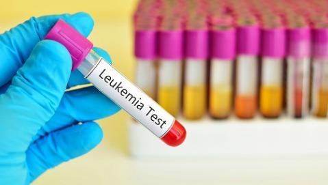 Leucemia fulminante si cura senza chemio