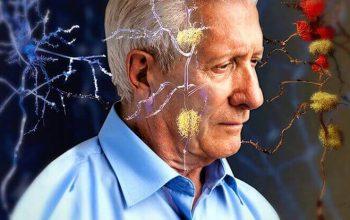 Perdita memoria Alzheimer cause
