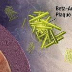 Alzheimer causa accumulo beta amiloidi