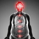 Obesità: scoperte nuove cause