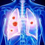 Tumore al polmone non fumatori scoperte cause